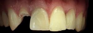 dentysta-stomatolog-efekty-leczenia-ząbki-kotłowski1