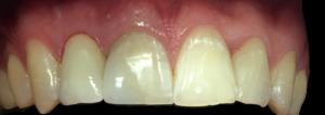dentysta-stomatolog-efekty-leczenia-ząbki-kotłowski2
