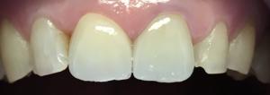 dentysta-stomatolog-efekty-leczenia-ząbki-kotłowski5