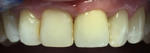 dentysta-stomatolog-efekty-leczenia-ząbki-kotłowski12