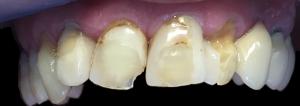dentysta-stomatolog-efekty-leczenia-ząbki-kotłowski6