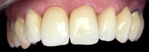 dentysta-stomatolog-efekty-leczenia-ząbki-kotłowski7