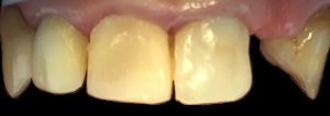 dentysta-stomatolog-efekty-leczenia-ząbki-kotłowski8