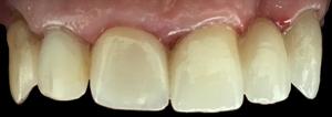 dentysta-stomatolog-efekty-leczenia-ząbki-kotłowski9